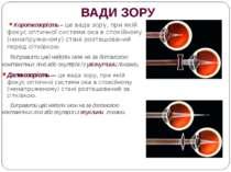 ВАДИ ЗОРУ Короткозорість – це вада зору, при якій фокус оптичної системи ока ...