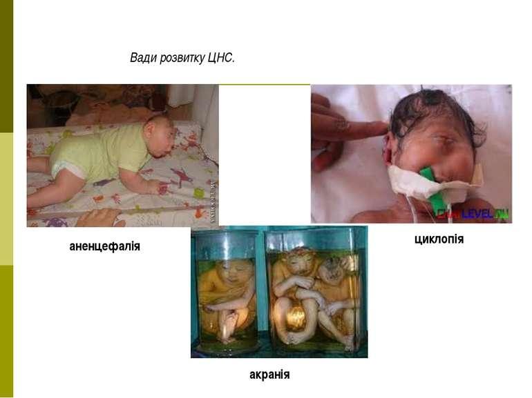Вади розвитку ЦНС. циклопія акранія аненцефалія