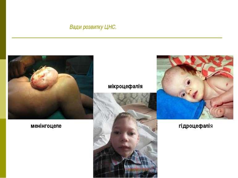 менінгоцеле мікроцефалія гідроцефалія Вади розвитку ЦНС.