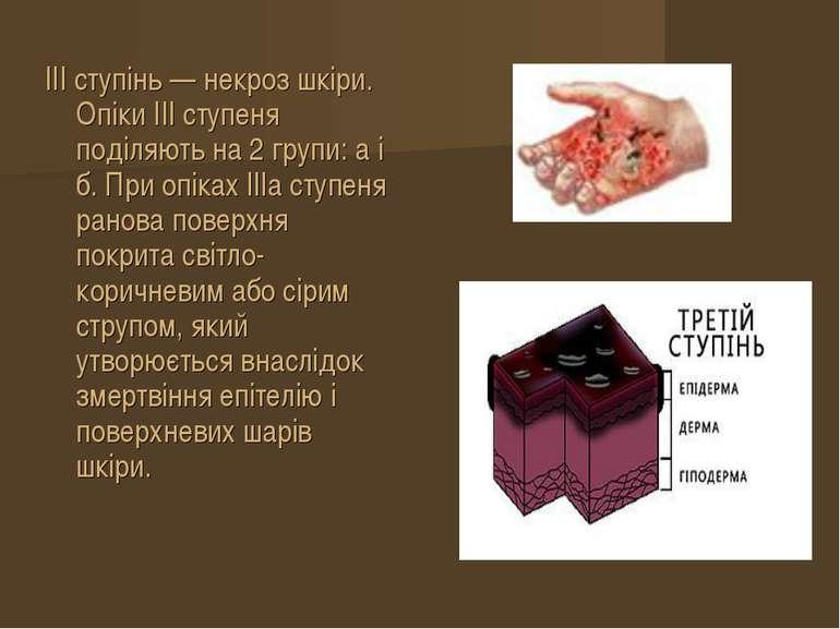 III ступінь — некроз шкіри. Опіки III ступеня поділяють на 2 групи: а і б. Пр...