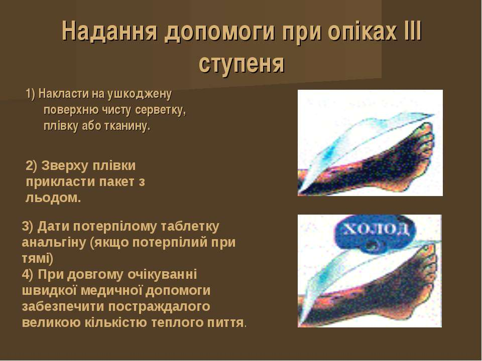 Надання допомоги при опіках IІІ ступеня 1) Накласти на ушкоджену поверхню чис...