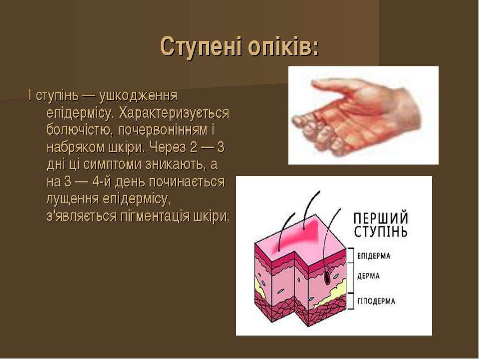 Ступені опіків: I ступінь — ушкодження епідермісу. Характеризується болючістю...
