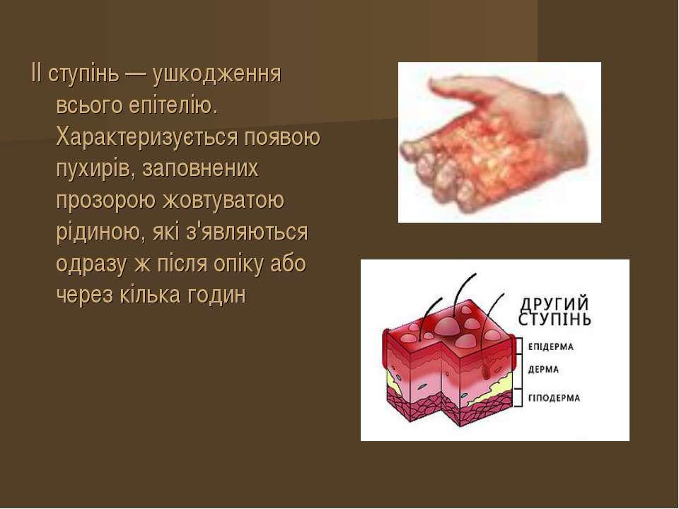 II ступінь — ушкодження всього епітелію. Характеризується появою пухирів, зап...