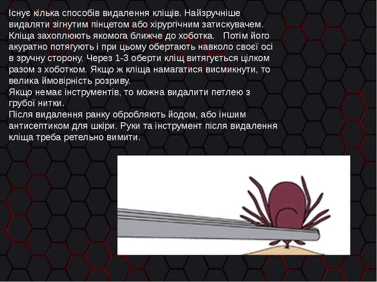 Існує кілька способів видалення кліщів. Найзручніше видаляти зігнутим пінцето...