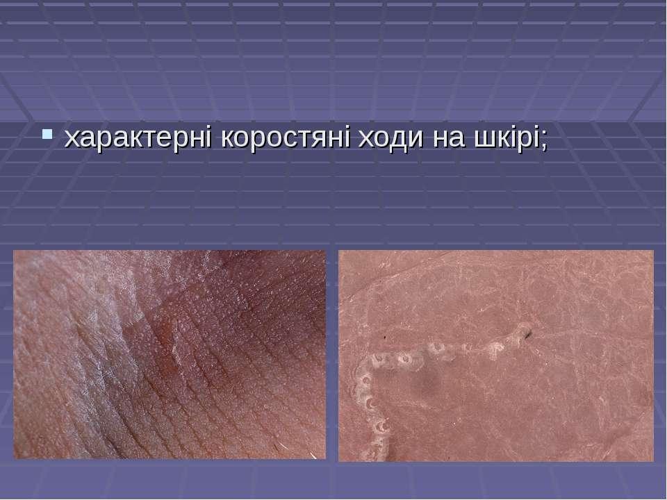 характерні коростяні ходи на шкірі;