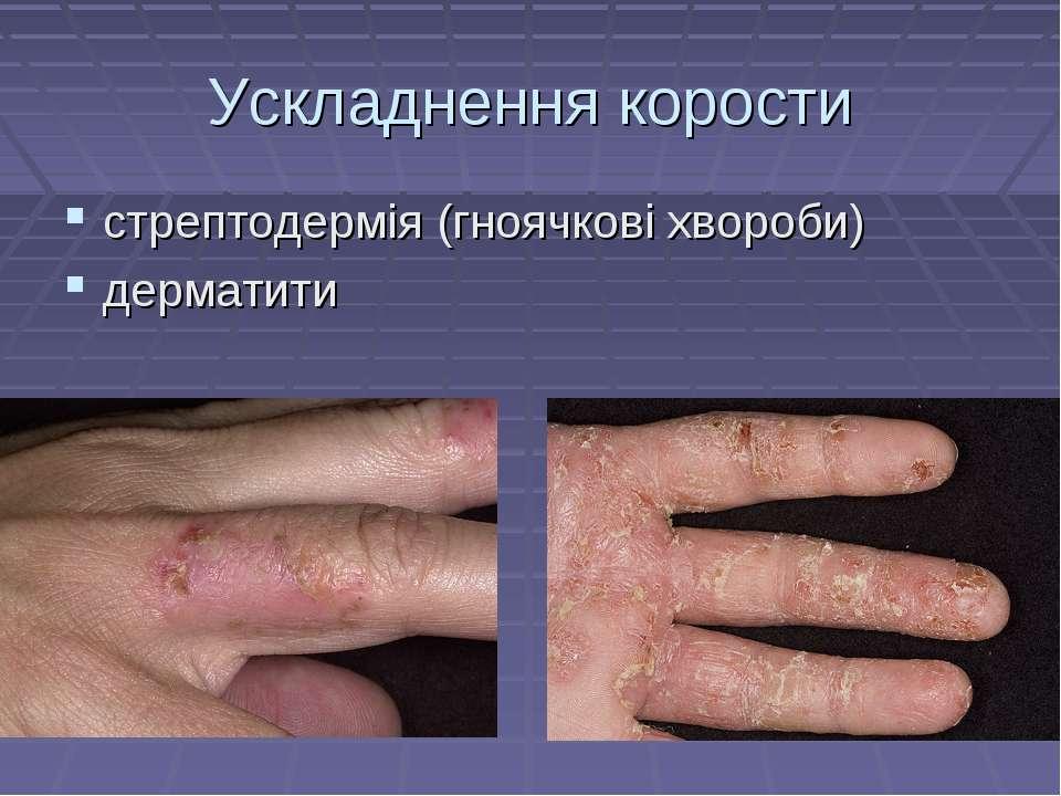 Ускладнення корости стрептодермія (гноячкові хвороби) дерматити