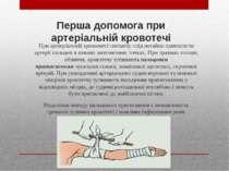 Перша допомога при артеріальній кровотечі Приартеріальній кровотечіспочатку...