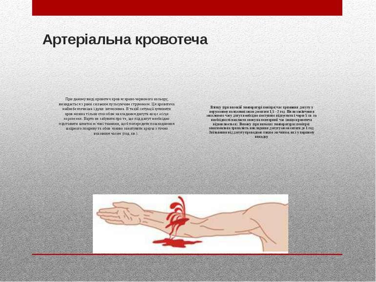 Артеріальна кровотеча При даному виді кровотеч кров яскраво-червоного кольору...
