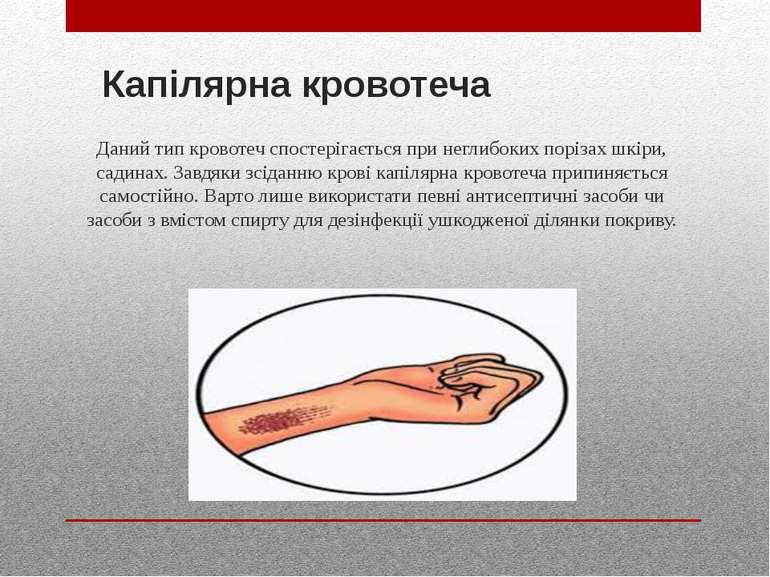 Капілярна кровотеча Даний тип кровотеч спостерігається при неглибоких порізах...