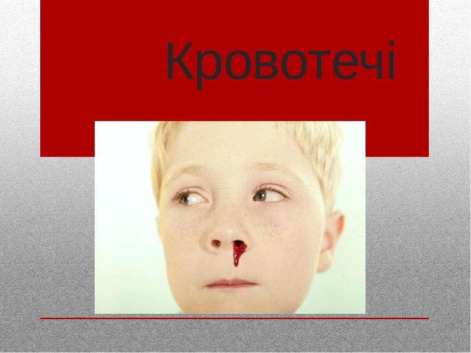 Кровотечі