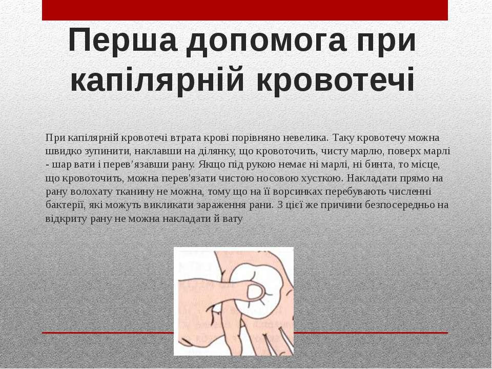 Перша допомога при капілярній кровотечі При капілярній кровотечі втрата крові...