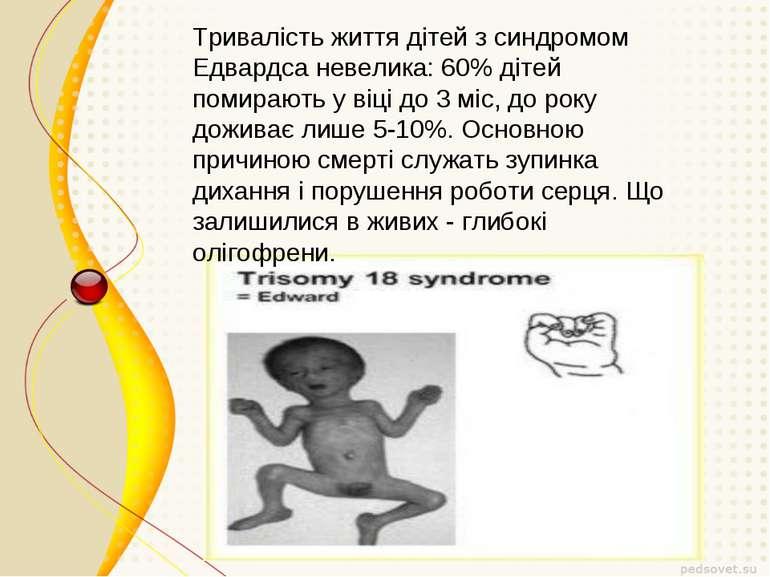 Тривалість життя дітей з синдромом Едвардса невелика: 60% дітей помирають у в...