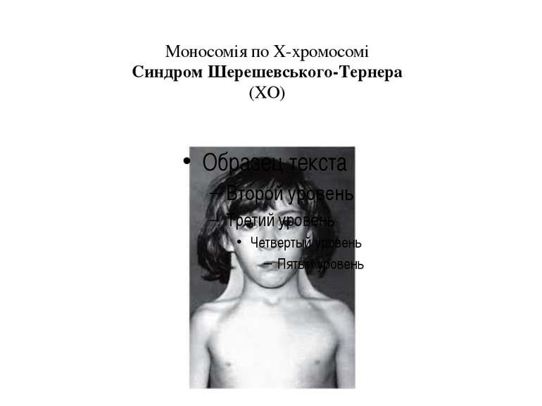 Моносомія по Х-хромосомі Синдром Шерешевського-Тернера (ХО)