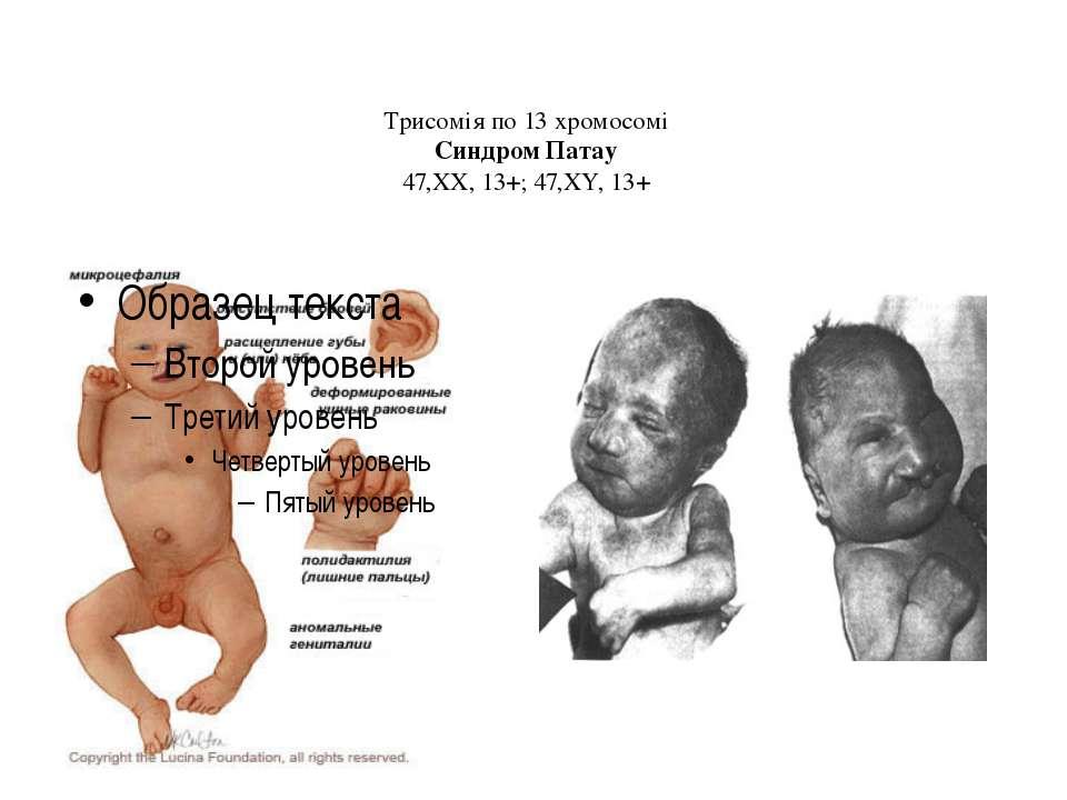 Трисомія по 13 хромосомі Синдром Патау 47,ХХ, 13+; 47,ХY, 13+