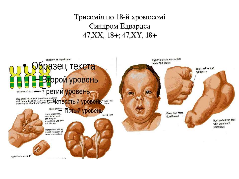 Трисомія по 18-й хромосомі Синдром Едвардса 47,ХХ, 18+; 47,ХY, 18+