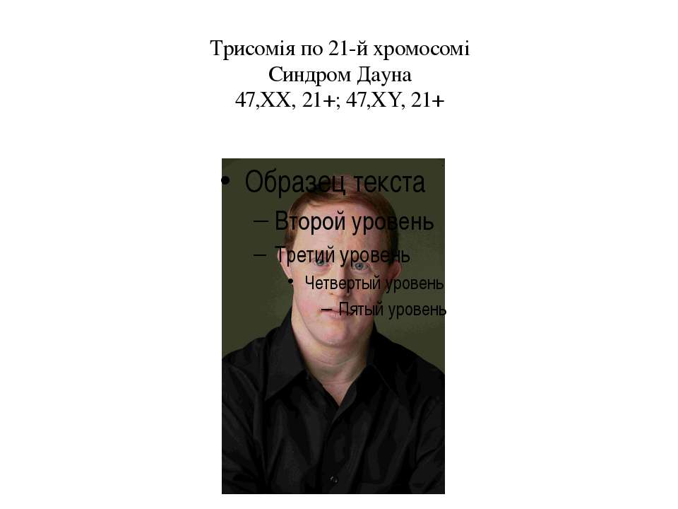 Трисомія по 21-й хромосомі Синдром Дауна 47,ХХ, 21+; 47,ХY, 21+