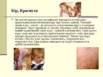 Кір, Краснуха Ця високозаразна вірусна інфекція передається повітряно-крапель...