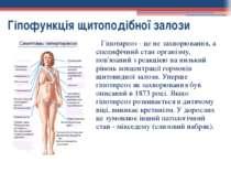 Гіпофункція щитоподібної залози Гіпотиреоз - це не захворювання, а специфічни...