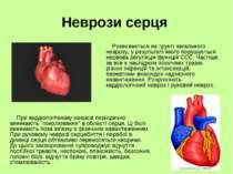 Неврози серця Розвивається на грунті загального неврозу, у результаті якого п...