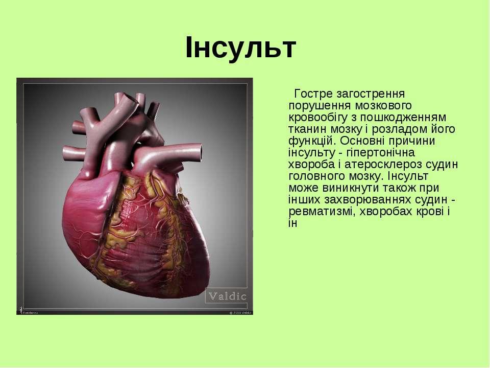 Інсульт Гостре загострення порушення мозкового кровообігу з пошкодженням ткан...