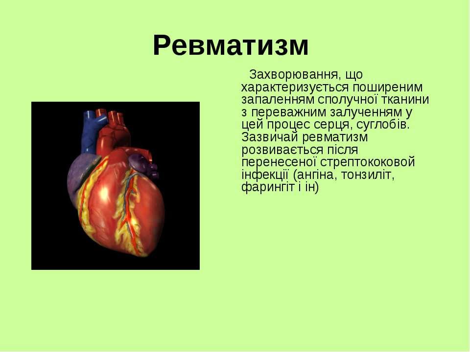Ревматизм Захворювання, що характеризується поширеним запаленням сполучної тк...