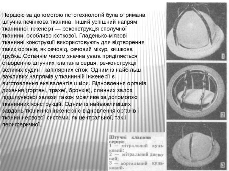 Першою за допомогою гістотехнологій була отримана штучна печінкова тканина. І...