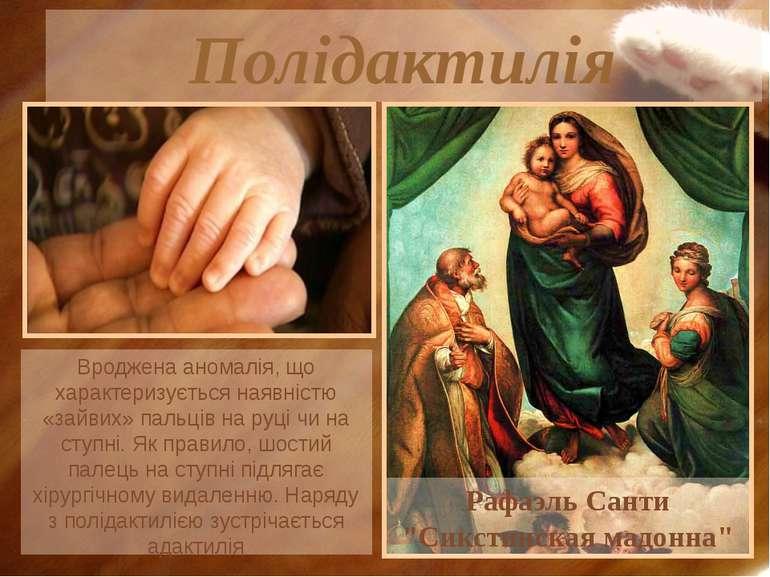 """Полідактилія Рафаэль Санти """"Сикстинская мадонна"""" Вроджена аномалія, що характ..."""