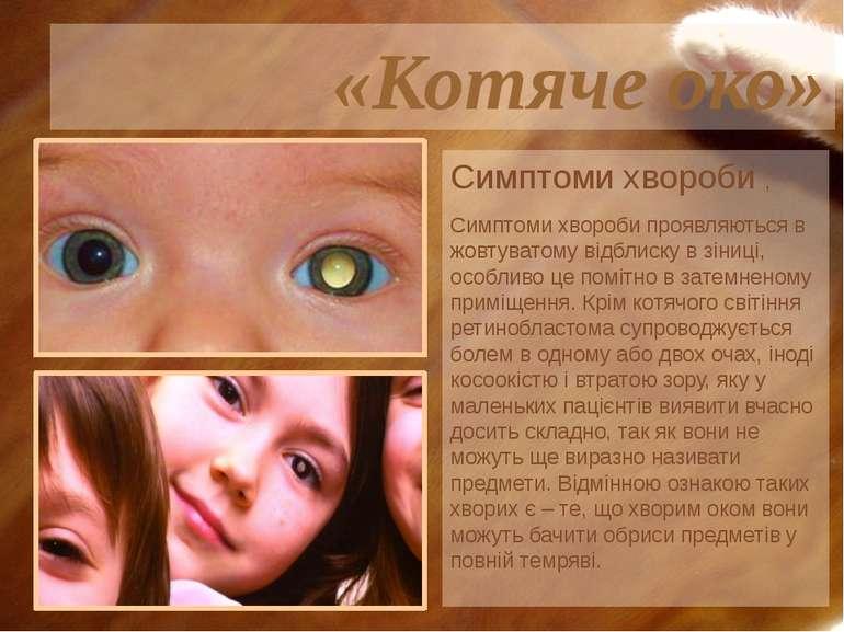 Симптоми хвороби , Симптоми хвороби проявляються в жовтуватому відблиску в зі...