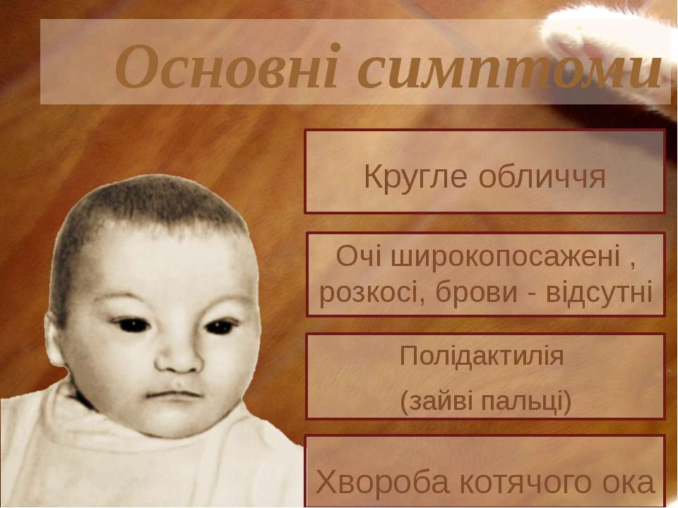Полідактилія (зайві пальці) Основні симптоми Очі широкопосажені , розкосі, бр...