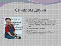 Синдром Дауна Частота 1/700 новонароджених; Малий череп, коротка шия, широке ...