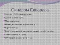 Синдром Едвардса Частота: 1/5000 новонароджених; Довгий вузький череп; Мале п...