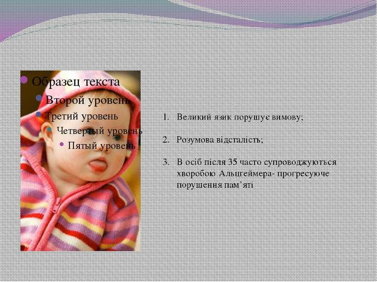 Великий язик порушує вимову; Розумова відсталість; В осіб після 35 часто супр...