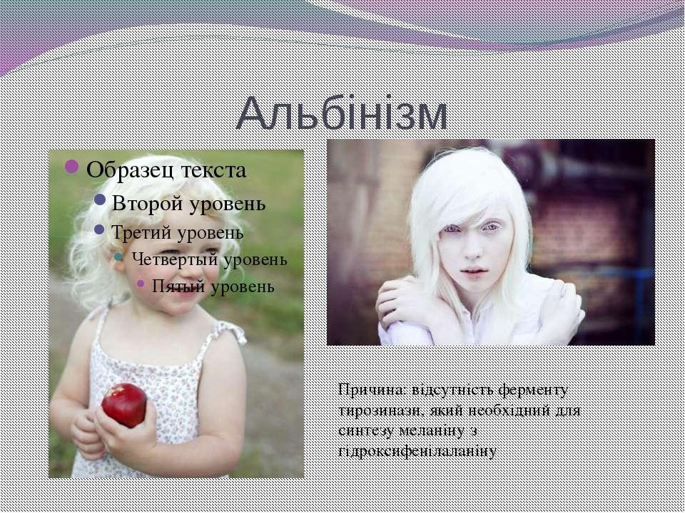 Альбінізм Причина: відсутність ферменту тирозинази, який необхідний для синте...