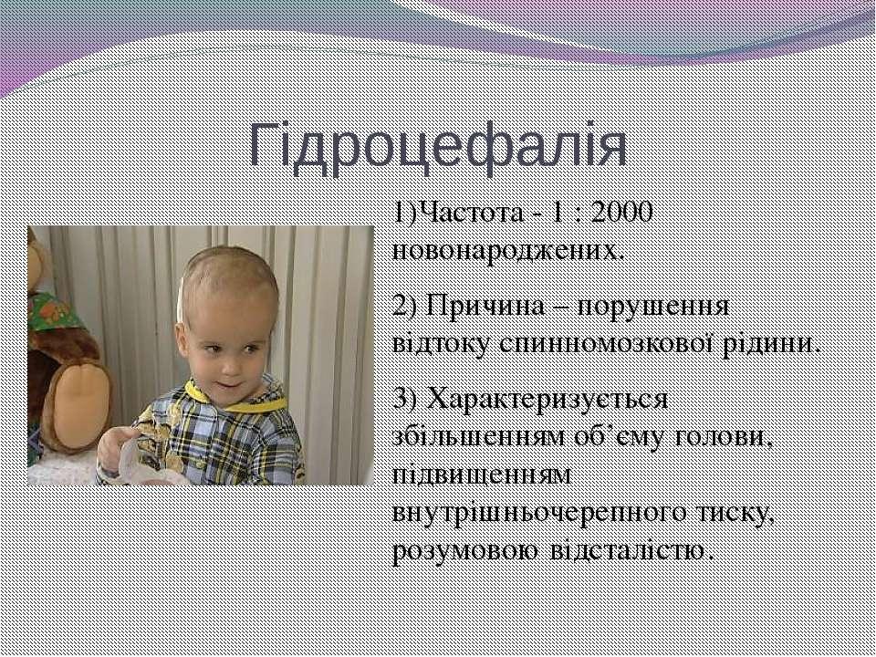 Гідроцефалія 1)Частота - 1 : 2000 новонароджених. 2) Причина – порушення відт...