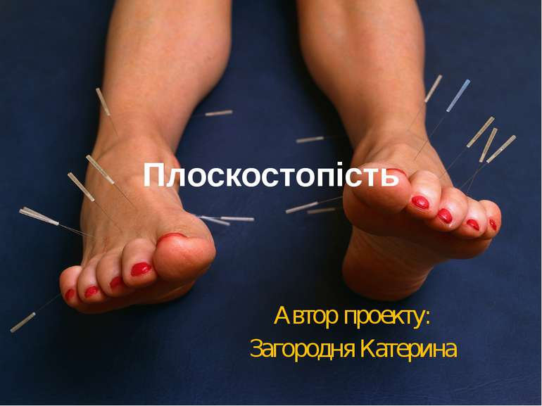 Плоскостопість Автор проекту: Загородня Катерина