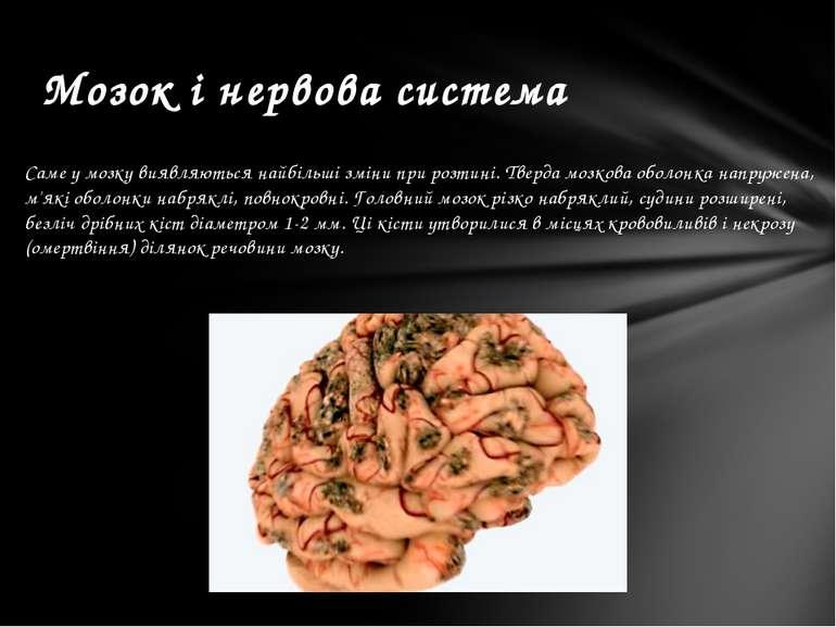 Саме у мозку виявляються найбільші зміни при розтині. Тверда мозкова оболонка...