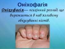 Оніхофагія Оніхофагія— психічний розлад, що виражається в нав'язливому обкусу...