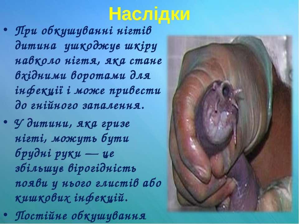 Наслідки При обкушуванні нігтів дитина ушкоджує шкіру навколо нігтя, яка стан...