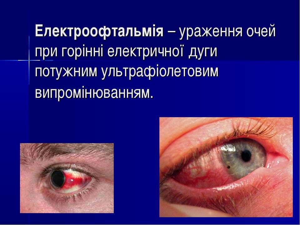 Електроофтальмія– ураження очей при горінні електричної дуги потужним ультра...