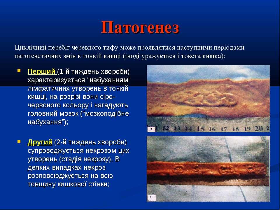 """Патогенез Перший (1-й тиждень хвороби) характеризується """"набуханням"""" лімфатич..."""
