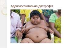 Адепозогенітальна дистрофія