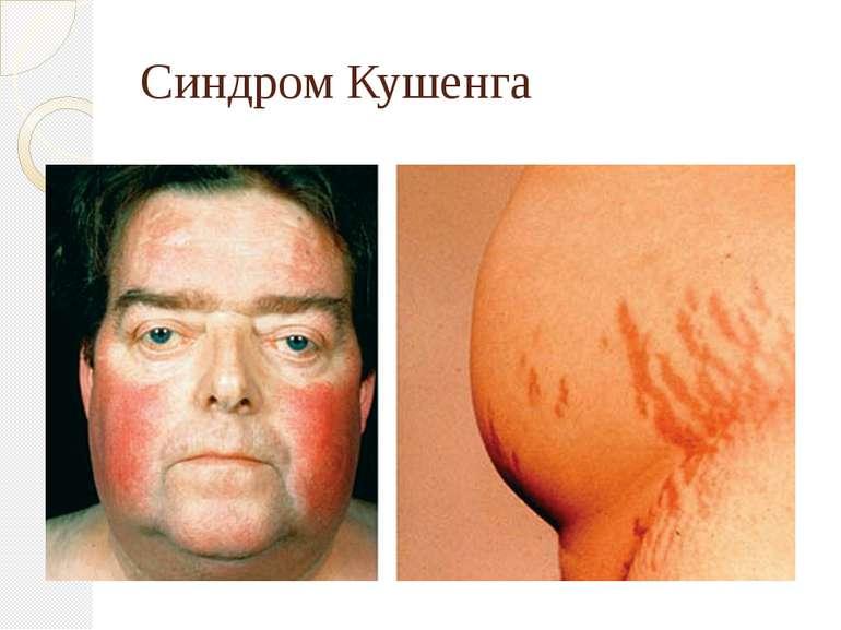 Синдром Кушенга