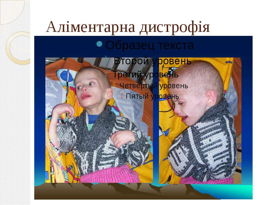 Аліментарна дистрофія