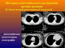 ІІ. Комп'ютерні рентгенівські технології -рентгенівська комп'ютерна томографі...