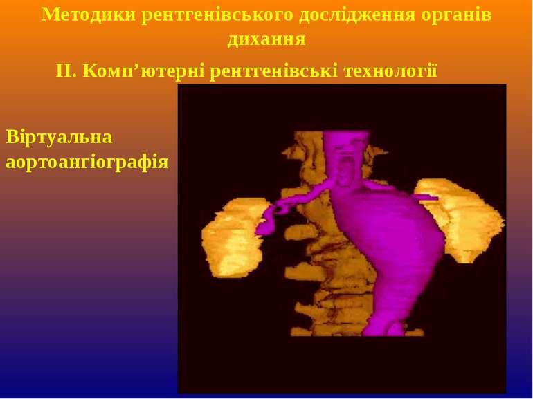 ІІ. Комп'ютерні рентгенівські технології Методики рентгенівського дослідження...