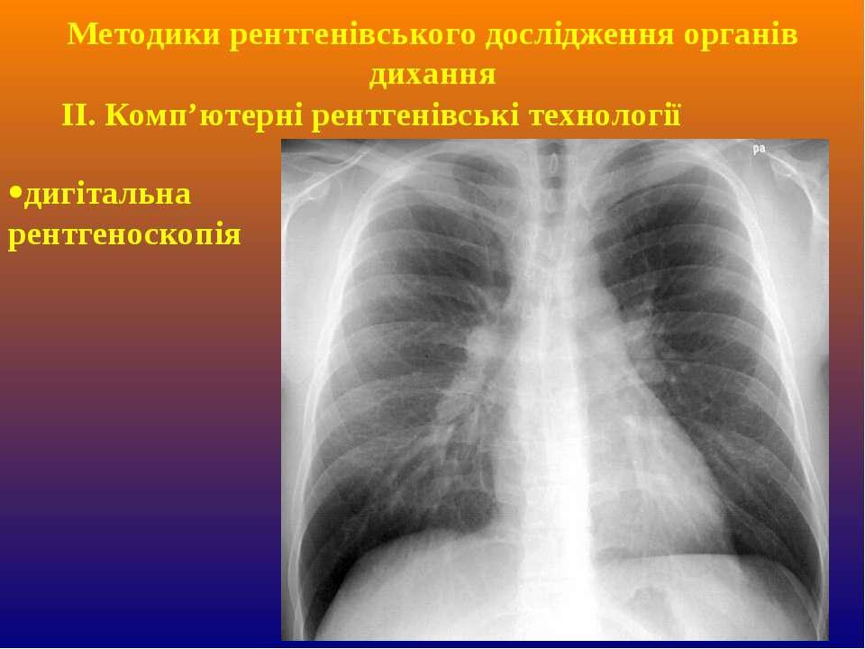 ІІ. Комп'ютерні рентгенівські технології дигітальна рентгеноскопія Методики р...
