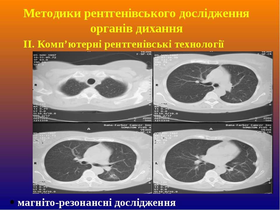 ІІ. Комп'ютерні рентгенівські технології магнiто-резонанснi дослiдження Метод...