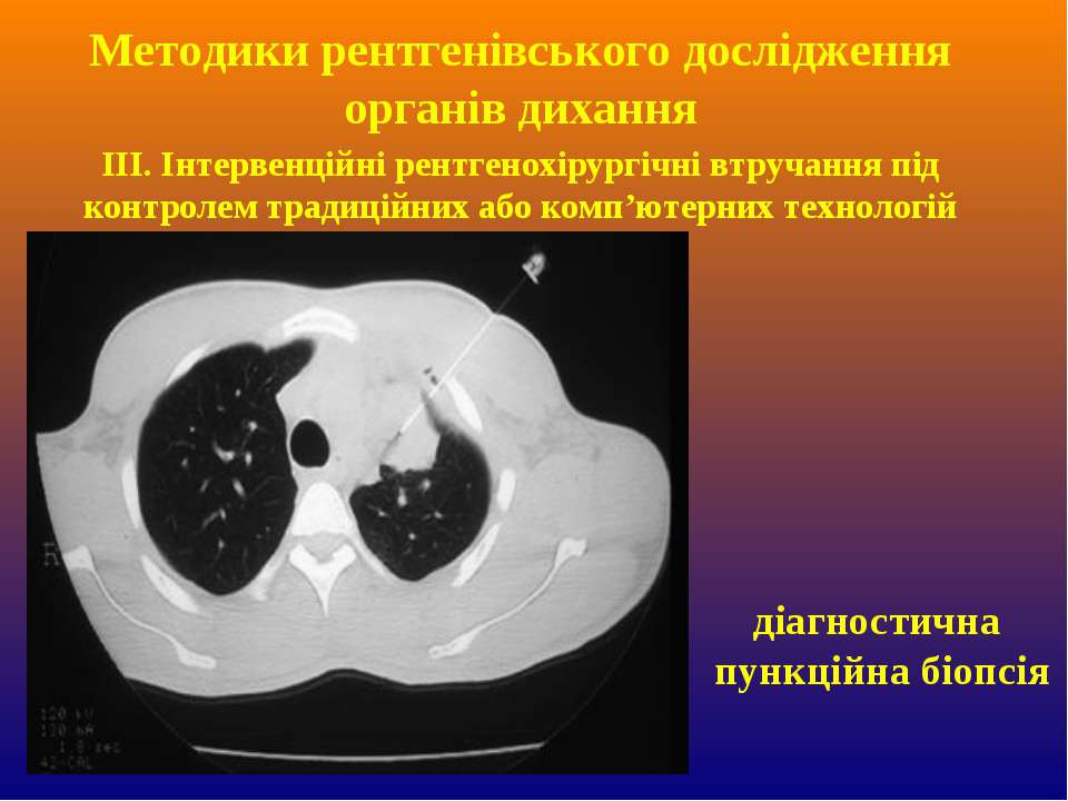 ІІІ. Інтервенційні рентгенохірургічні втручання під контролем традиційних або...