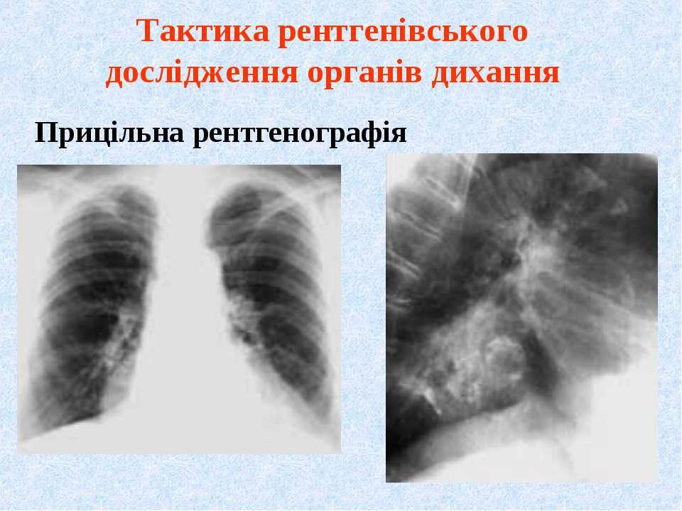 Прицільна рентгенографія Тактика рентгенівського дослідження органів дихання