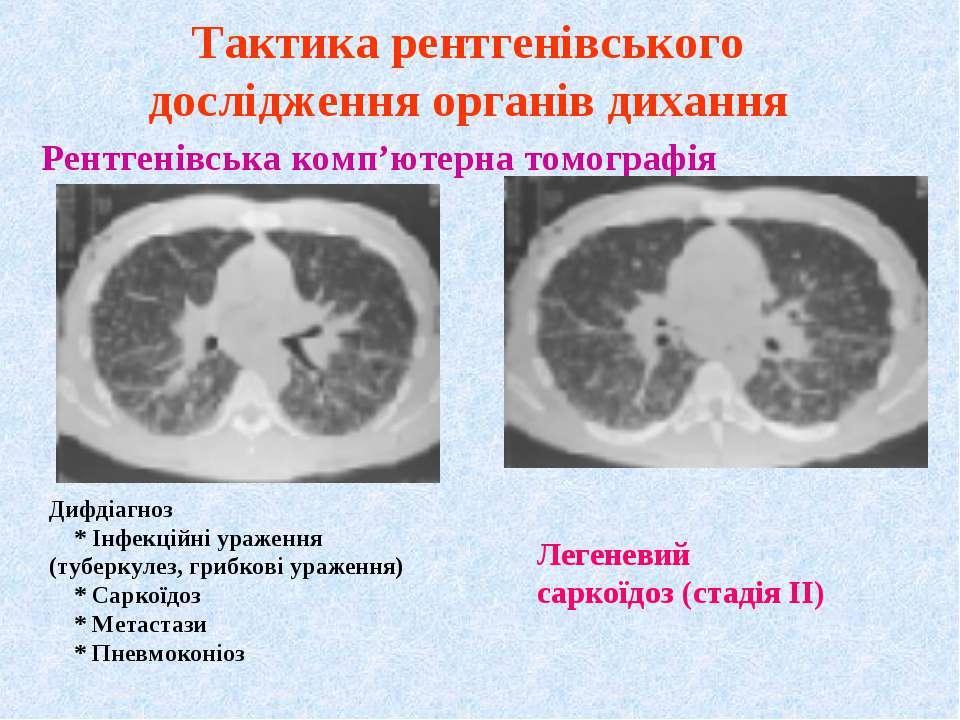 Рентгенівська комп'ютерна томографія Тактика рентгенівського дослідження орга...